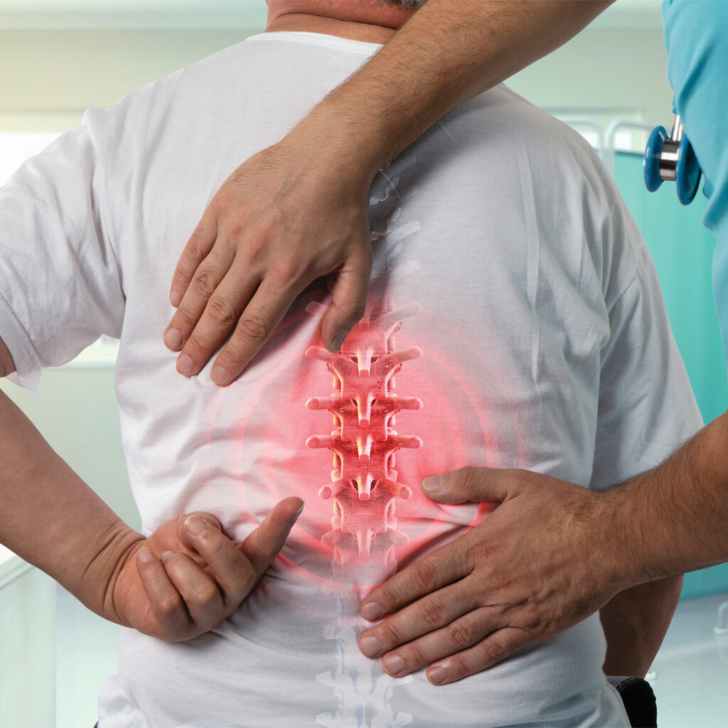 Radiculopathy in Denver, CO and Longmont